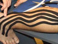 La importancia de la medicina deportiva en la prevención de lesiones y su recuperación